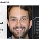 NYC Cosmetic Dentist Michael Kosdon, DDS Reveals a New Porcelain Veneers Website